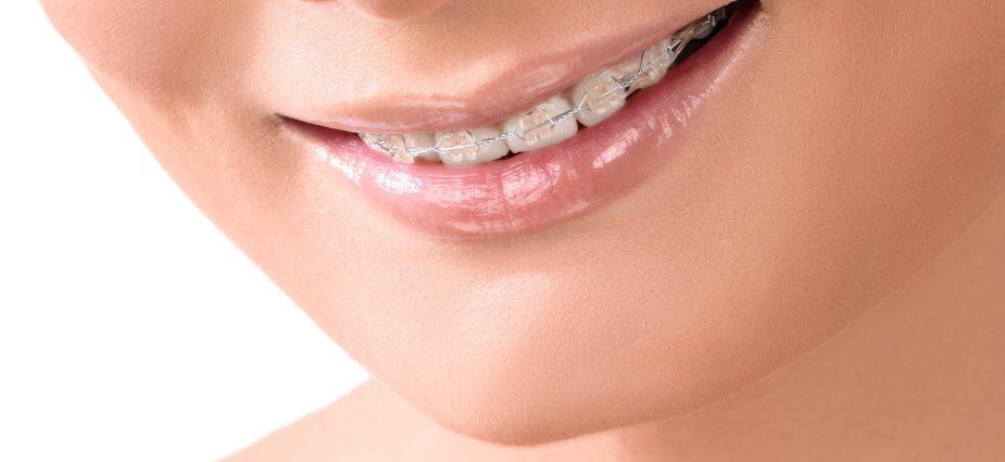 invisible-braces-smile-min-925x425